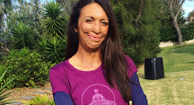 Turia Pitt Announces Plans To Compete At Ironman World Championships